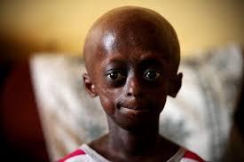 Ontlametse Phalatse dies at age 18 after a long battle with Progeria!