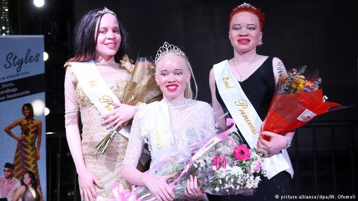 Zimbabwe crowns first Miss Albinism in drive to eradicate stigma